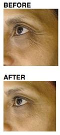 Neutrogena clinical before after