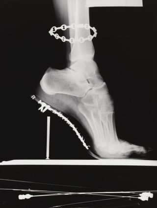 Helmut newton x ray foot shoe vogue
