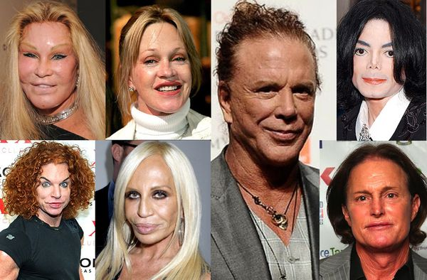 Scary bad celebrity plastic surgery
