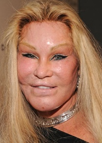 Jocelyn wildenstein crazy plastic surgery