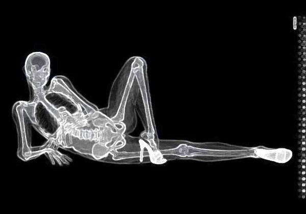 Eizo x-ray pinup calendar