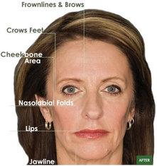 Non Invasive Cosmetic Plastic Surgery